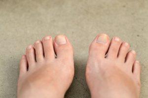 足の爪がボロボロで白い 表面のカサカサを治す方法は 5分で